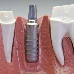 Как подготовиться к имплантации зубов, виды имплантатов
