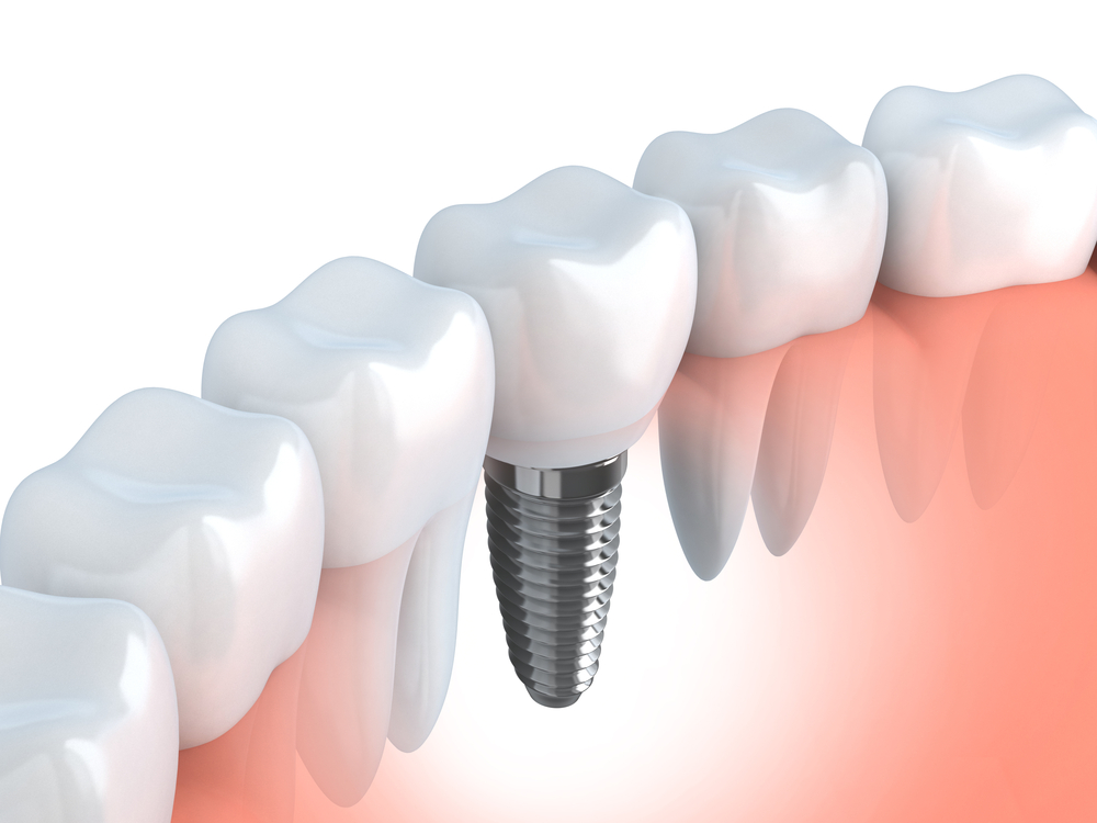 Импланты зубов виды и цены в туле