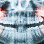 В каких случаях нужно удалять зубы мудрости