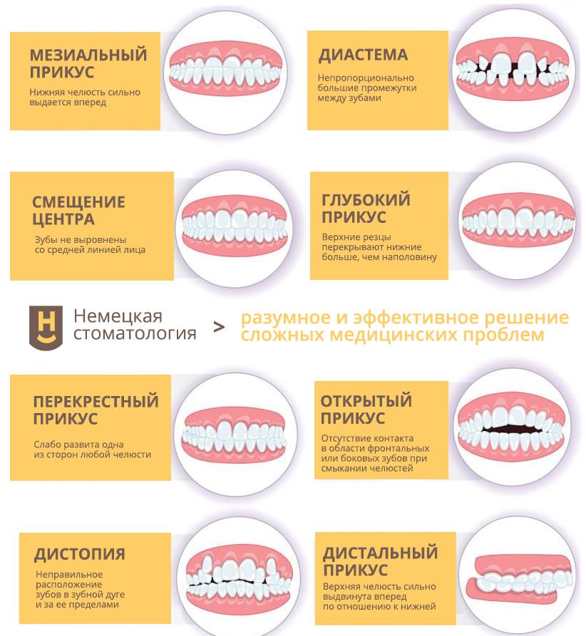 Патологии прикуса и расположения зубов