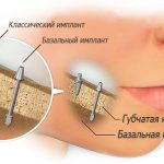 Что такое базальная имплантация?