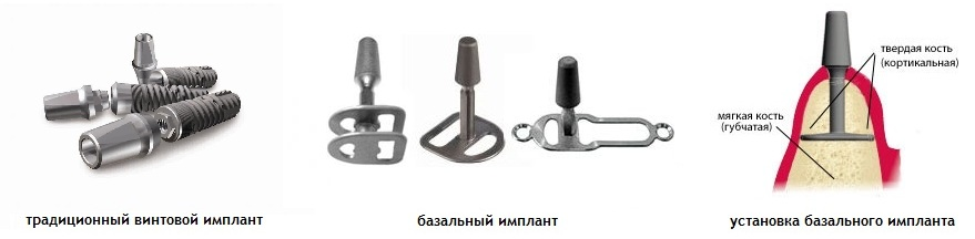 bazalnie-implanti
