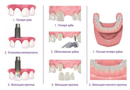 имплантация или протезирование