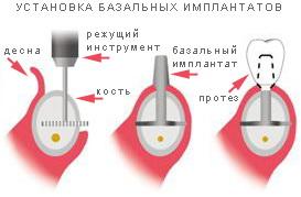 установка базальных имплантов