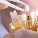 Чем опасна имплантация зубов?