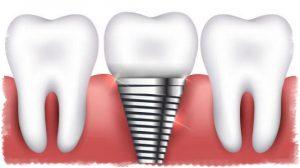 zubniy-implantaty