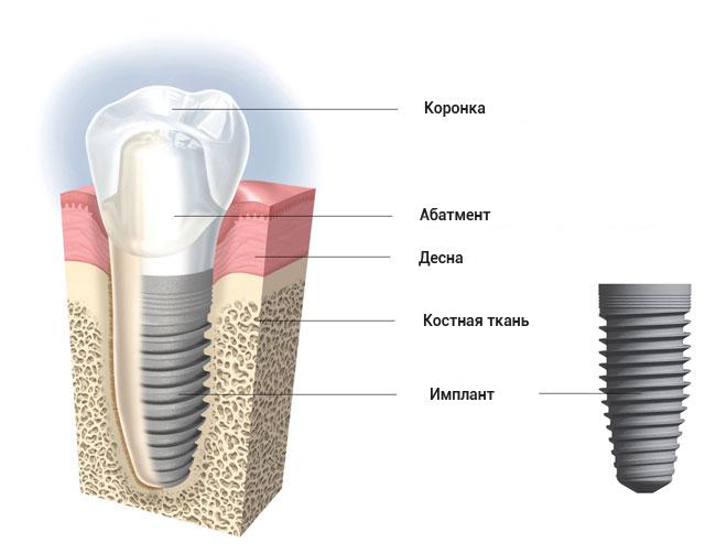 implant_info