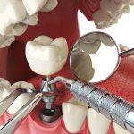 Почему имплантация зубов стоит так дорого?