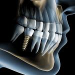 Когда имплантация зубов невозможна?