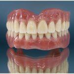Cколько стоит имплантация всех зубов?