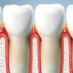 Is it possible to cure periodontitis at home?
