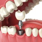 What to do after tooth implantation?