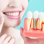 Почему имплантация зубов безопасна?